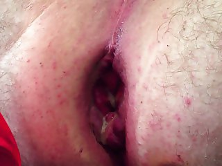 Close up anal insertion Favourite toys. Huge Insertion